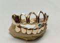 gold-teeth.jpg
